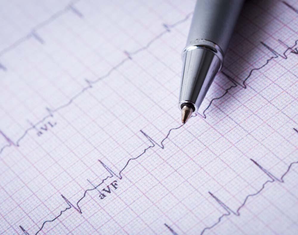 hjerte utredning